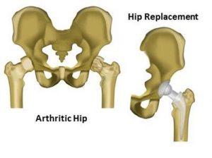 total-hip-replacement-diagram-2
